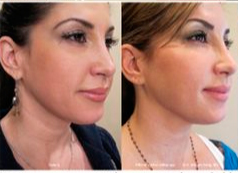 Jacqueline-Laurita-Ultherapy-Before-and-After