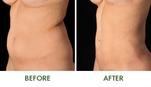 Vaser Belly Fat Before and After