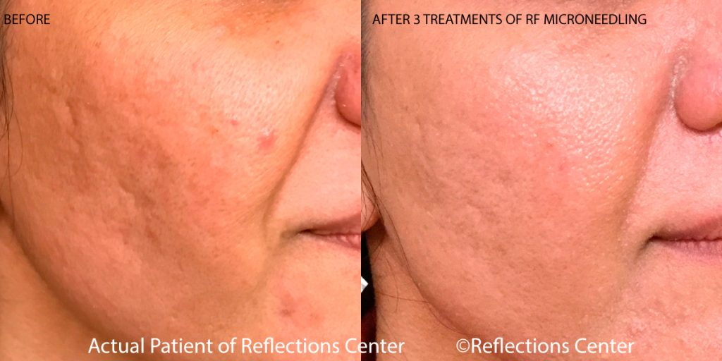 RF Microneedling for Acne Scars Results at Reflections Center in New Jersey