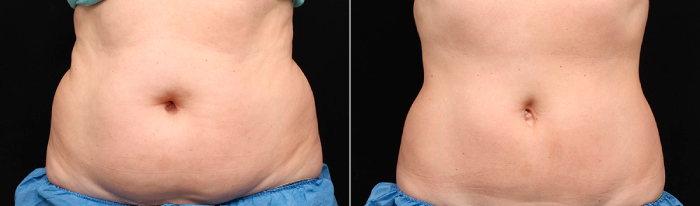 Belly Fat Removal with CoolSculpting