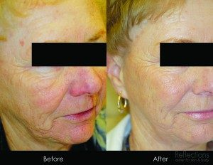 Sculptra as a Facelift Alternative