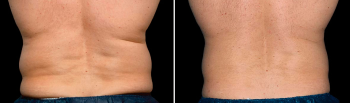 Love Handle Removal with CoolSculpting
