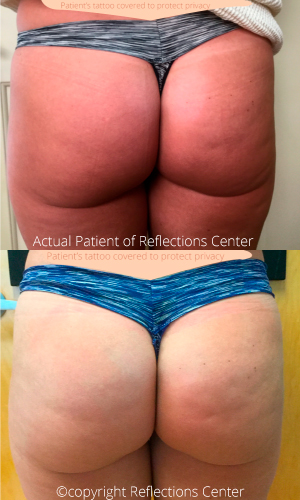 Sculptra Butt Results NJ
