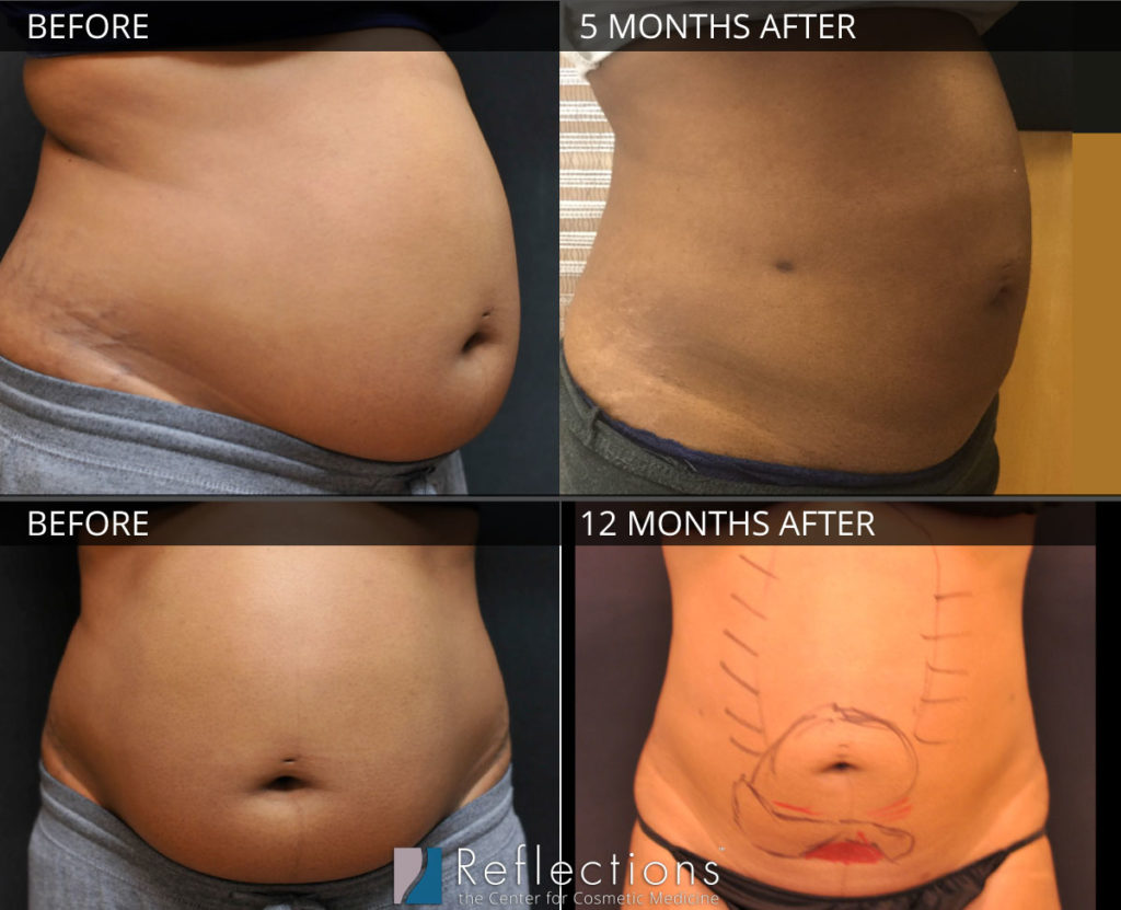 Laser Lipo major weightloss results