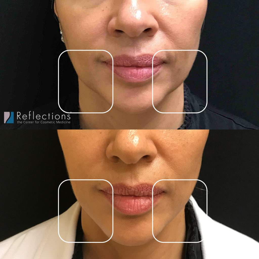 """The """"pre-jowl sulcus"""" is indicated with white boxes in this image."""