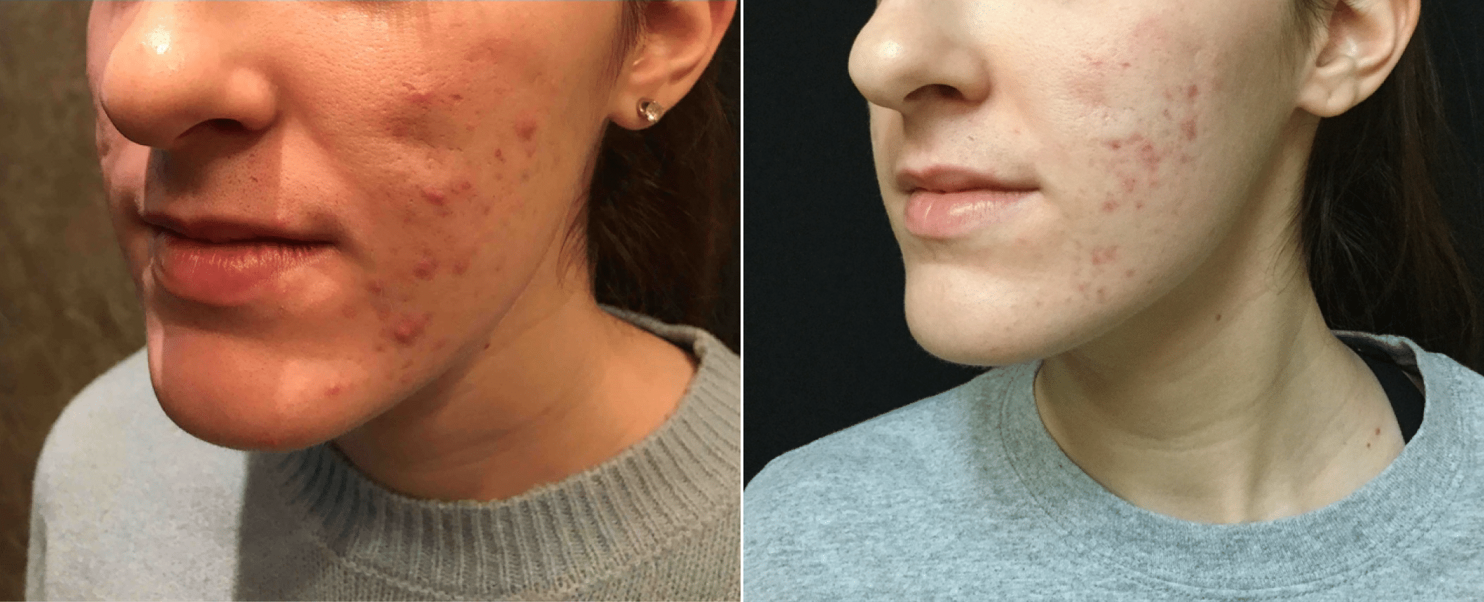 Acne Scar Subcision With Filler Before And After Photos New Jersey