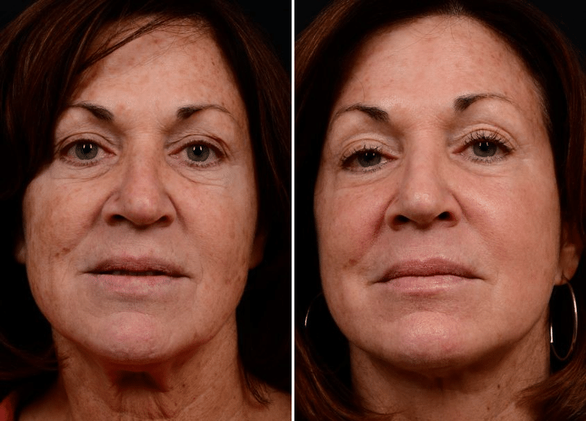 Fractional Co2 Laser 1 500 To 4 500 Reflections Center Nj