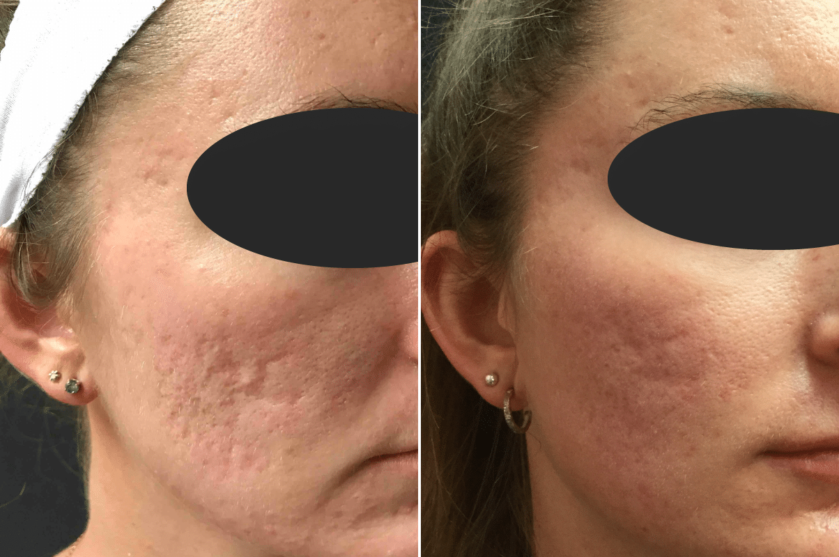 Acne Scars Before And After Photos New Jersey Reflections Center