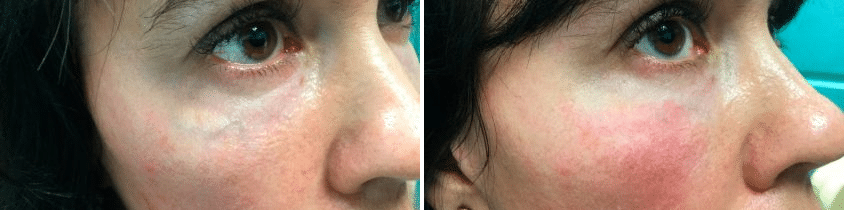 Under Eye Dark Circles Before And After Photos New Jersey Reflections Center Dark circles under your eyes are largely genetic, but are considered unattractive in our society. under eye dark circles before and after