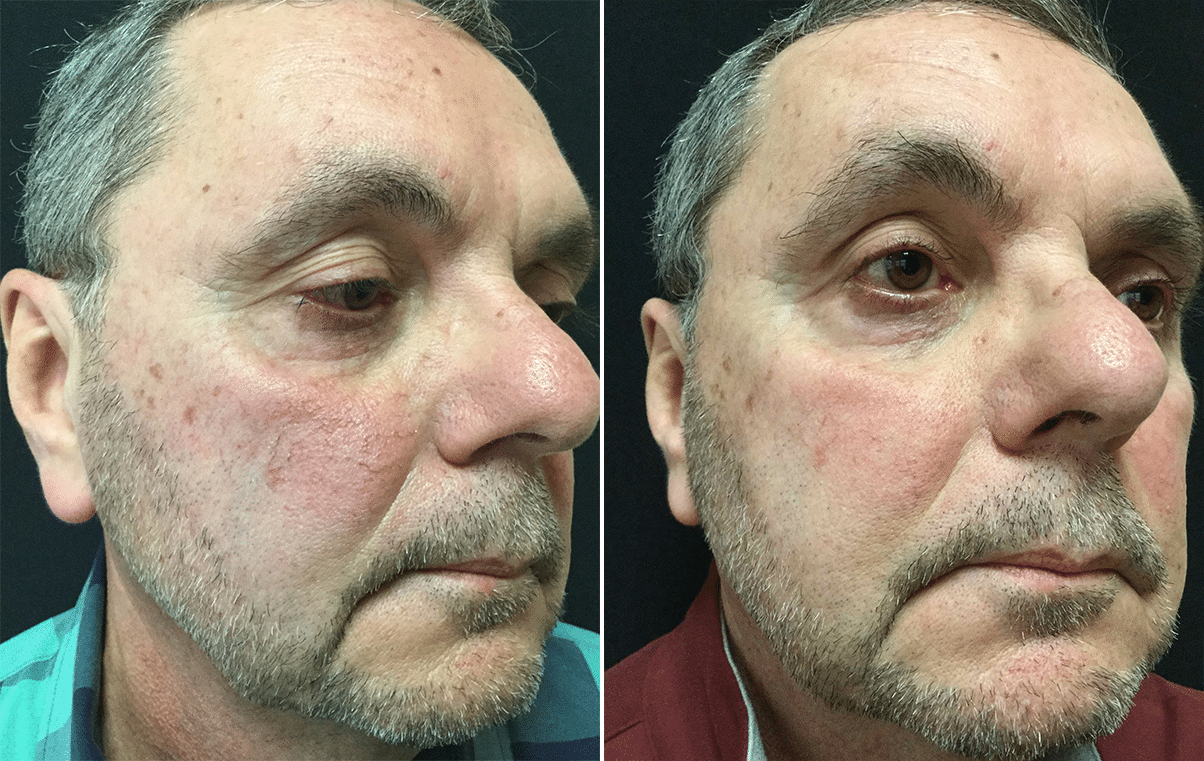 Rosacea Redness Treatment With Laser Vbeam