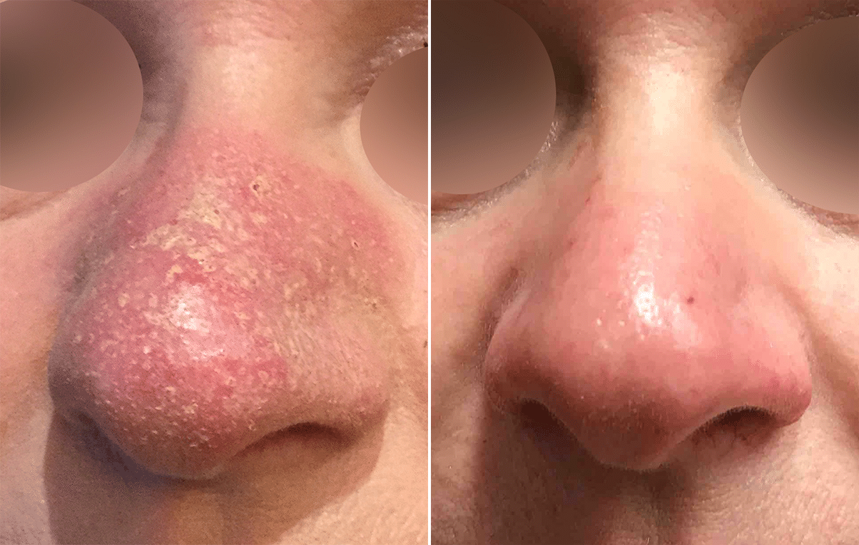 Vbeam Rosacea Treatment Before And After Photos New Jersey