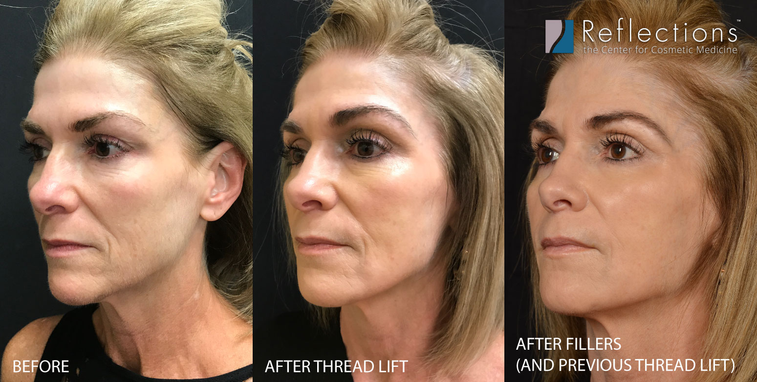 threads vs fillers results NJ