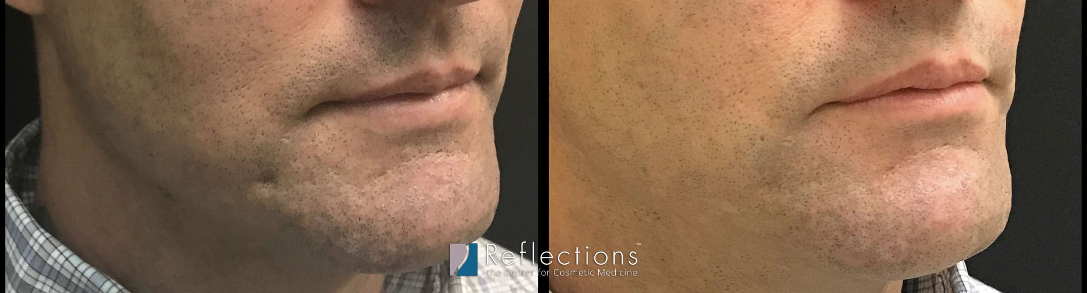 Subcision With Filler For Deep Acne Scar Before And After Photos New Jersey